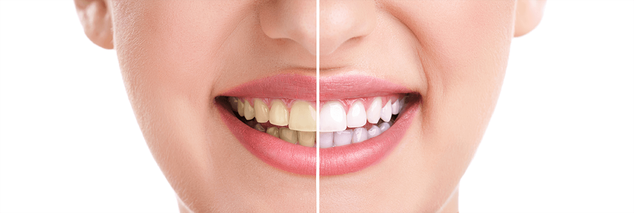 Teeth Whitening in Spring, Texas